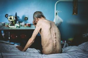 Mikhail, 1948. Diagnosis: MDR TB. Kherson TB hospital, July 2011.