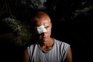 Miner with eye injury