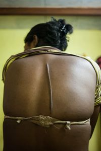 A drunken client slashed Kajal with a knife two years ago.  Most Hijra sex workers work out in the open and they are at constant risk of being attacked.  © Alison McCauley