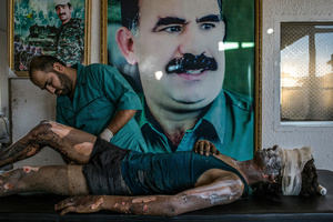 A doctor rubs ointment on the burns of a 16-year-old Islamic State fighter namedJacob in front of a poster of Abdullah Ocalan, the jailed leader of the KurdistanWorkers' Party, at a Y.P.G. hospital compound on the outskirts of Hasaka, Syria on 01 August 2015.