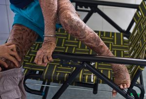 """A young boy who suffers from a skin condition known as """"X-linked ichthyosis"""" is assisted as he changes his pants."""