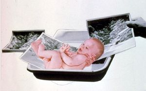 Reproduction, from Journal of a Miscarriage, 1973 ©Joanne Leonard.  Collection of Jeremy Stone, San Francisco