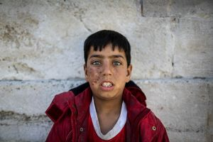 Hasan is from Aleppo. He lost his father while fleeing from Syria. He received the scar on his face during that time. Now he is staying in a park with his mother and two younger sisters. All of them spend their days begging in front of the nearby mosques. © Turjoy Chowdhury