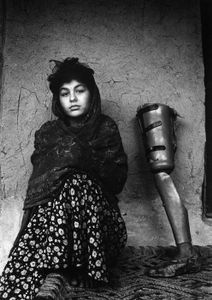 1997. Fahrida lost her leg during a mujahideen mortar attack in Jalalabad © Harriet Logan