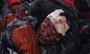 A man suffering from severe head trauma is bundled in a sleeping bag used asa makeshift stretcher while being taken by rescuers to a medical tent moments after the avalanche in Nepal, 25 April 2015.