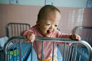 An infant with deformed hands in the Peace Village ward of Tu Du Hospital in Ho Chi Minh City.